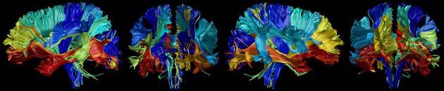 Hoe verandert de samenstelling van 24 delen van ons brein tussen ons zevende en 83e levensjaar? De rode delen veranderden het sterkst. De blauwe veranderden het minst. Afbeelding: Wandell Lab.