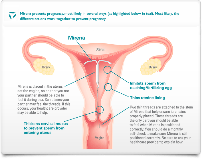 Diagram of the female reproductive system, describing how the Mirena IUD works to prevent pregnancy in several ways.
