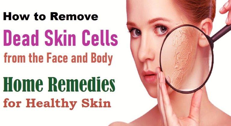 Dead Skin Cells