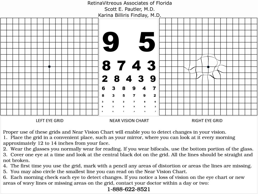 Amsler grid eye chart choice image free any chart examples amsler grid eye chart gallery free any chart examples amsler grid eye chart choice image free nvjuhfo Images