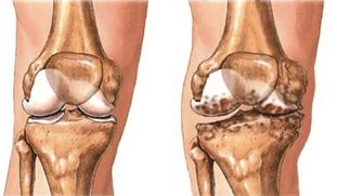 prevenine l'artrosi