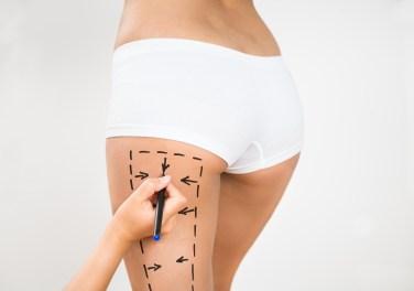 Cellulite Treatment San Antonio