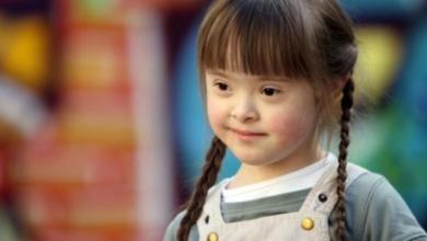 """صورة طفل متلازمة داون """"مختلف لكنه إنسان """"في أكتوبر شهر التوعية بالمرض"""