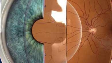 صورة ما هي عدسات ICL التي تستخدم لتصحيح البصر ؟