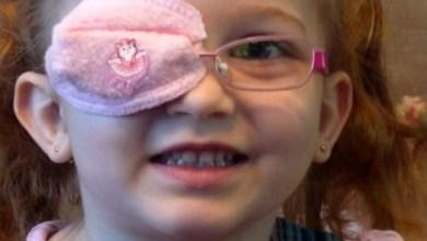 """صورة الدكتورة أمية جنود """"لا تتهاون بالكشف المبكر لكسل العين الوظيفي لطفلك .."""
