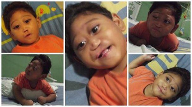 Calebe precisa da sua ajuda! Ele nasceu com holoprosencefalia.