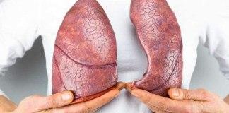 Tuberculose: doença mata 4.500 pessoas todos os dias no mundo
