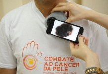 """Campanha """"Dezembro Laranja"""" alerta sobre o câncer de pele"""