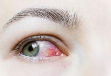 Coronavírus pode causar conjuntivite segundo Academia Americana de Oftalmologia
