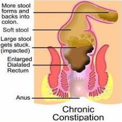 Constipation in Adults