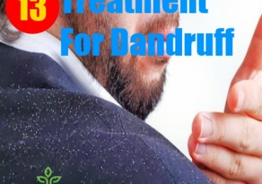 13 Treatment For Dandruff