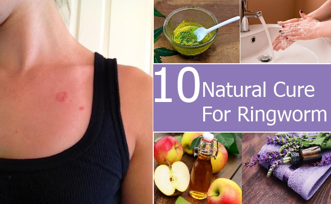 Natural Cure For Ringworm