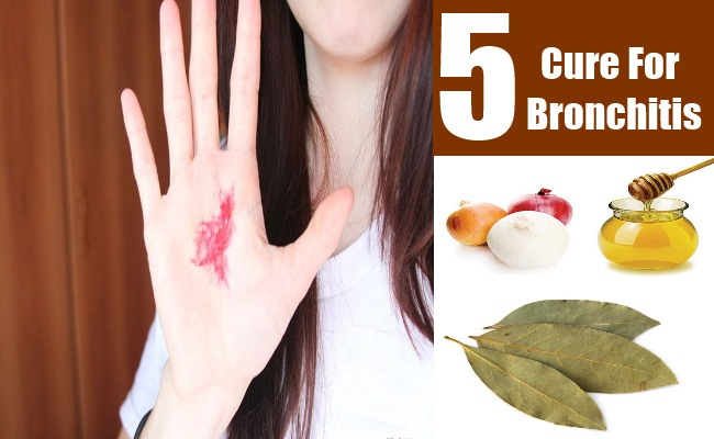 5 Cure For Bronchitis