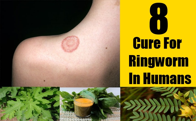 8 Cure For Ringworm In Humans