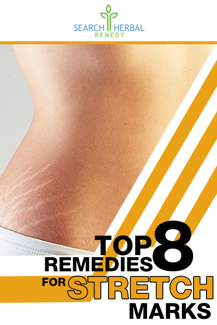 top-8-remedies-for-stretch-marks