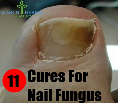 11 Cures For Nail Fungus