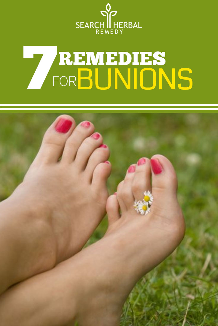 7-remedies-for-bunions