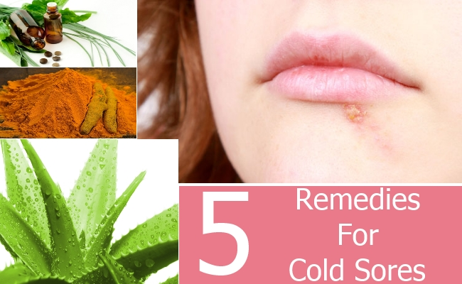 Remedies For Cold Sores