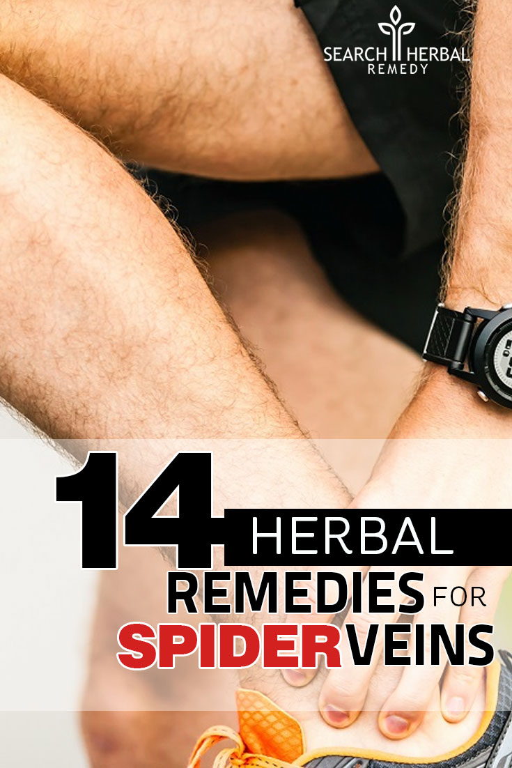 14-herbal-remedies-for-spider-veins