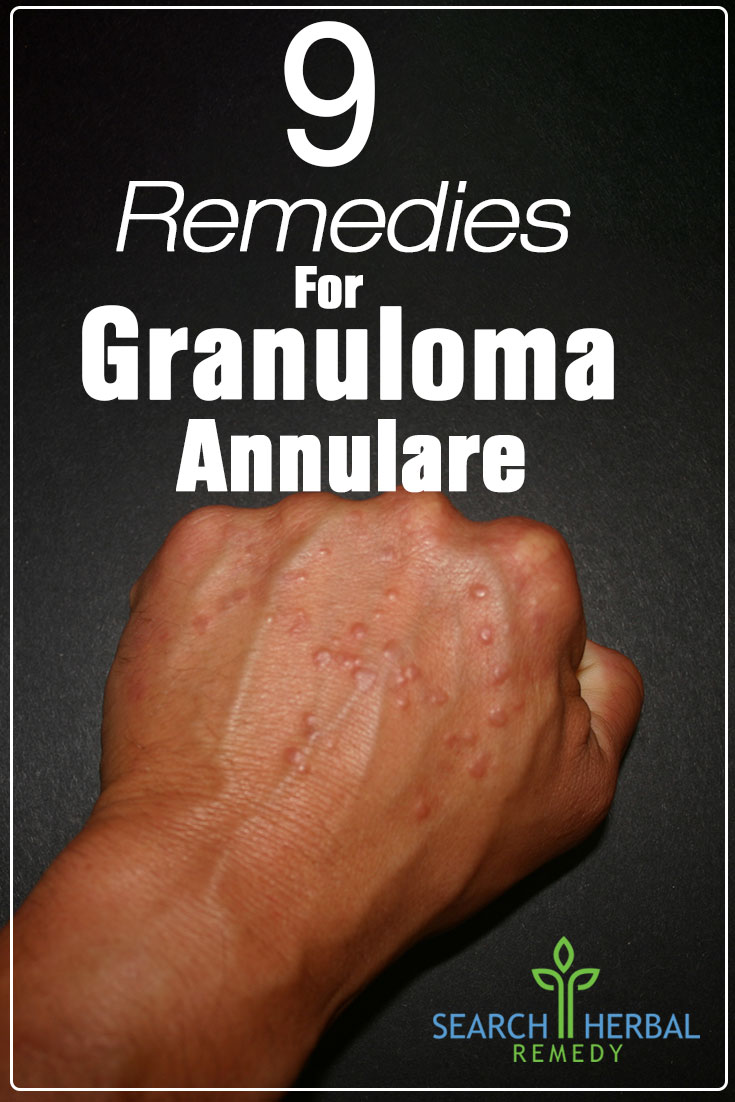 9-remedies-for-granuloma-annulare