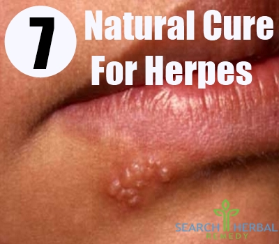 7 Natural Cure For Herpes - How To Cure Herpes Naturally | Search