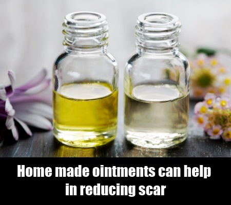 Home Made Ointments