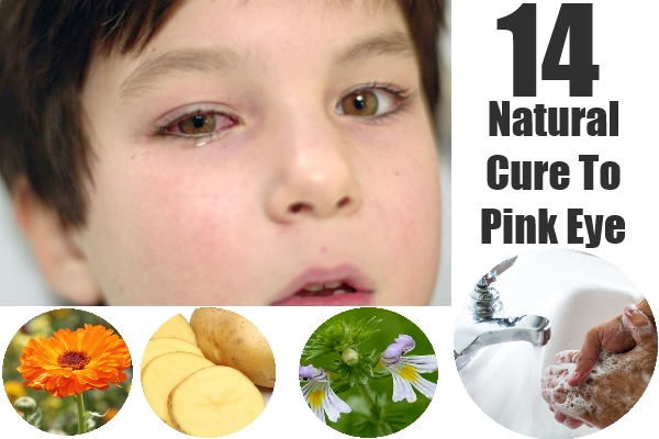 Natural Cure To Pink Eye