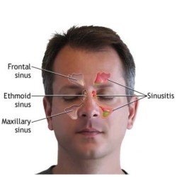 Top 18 Natural Cures for Sinusitis