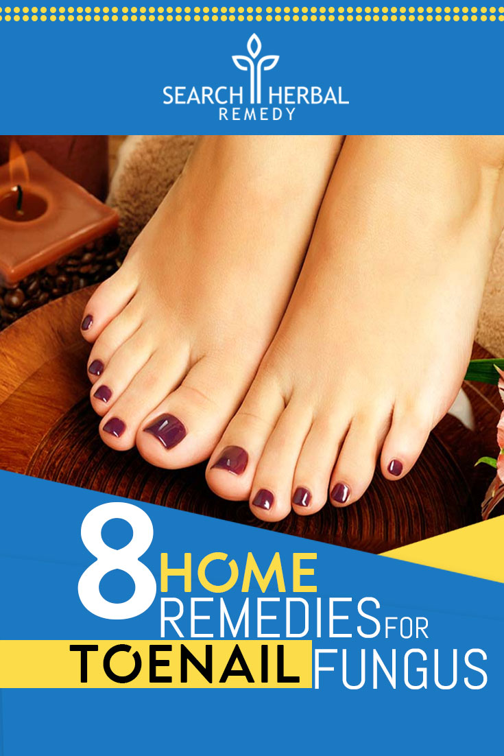 8-home-remedies-for-toenail-fungus