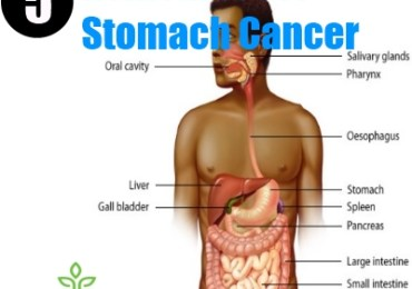 5 Remedies For Stomach Cancer