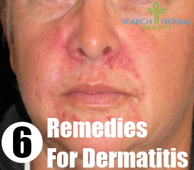How To Cure Atopic Dermatitis Naturally