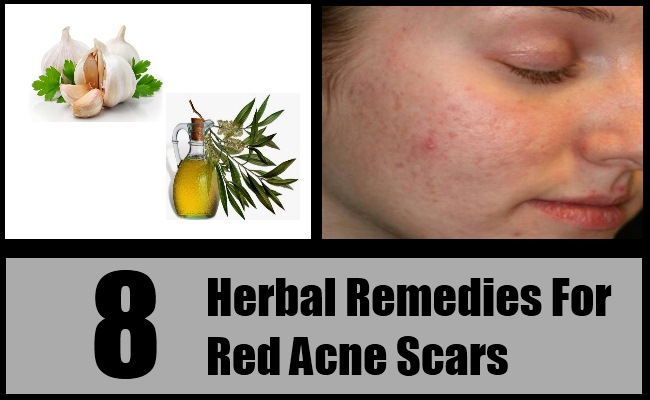 Red Acne Scars