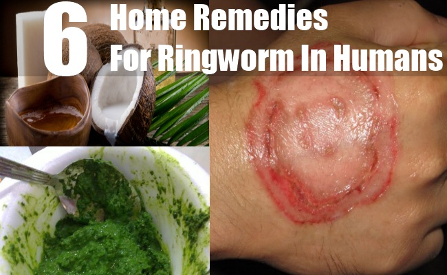 Ringworm In Humans