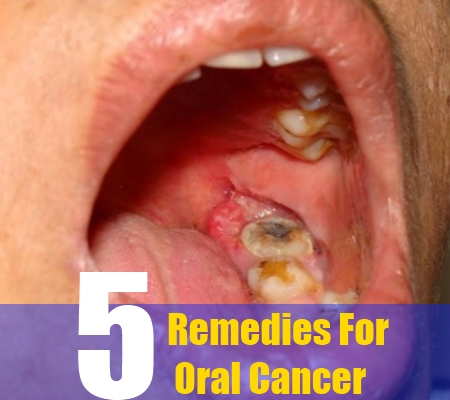 Mouth Cancer Cure Natural