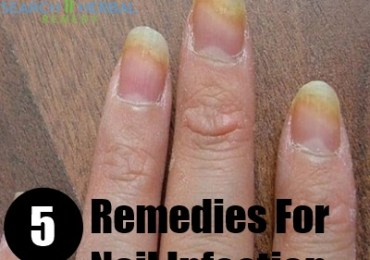 5 Remedies For Nail Infection