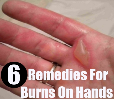 burns On hands