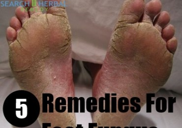 5 Remedies For Foot Fungus