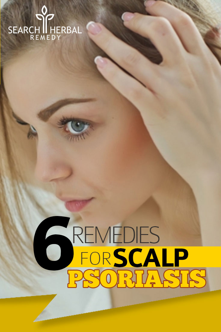 6-remedies-for-scalp-psoriasis