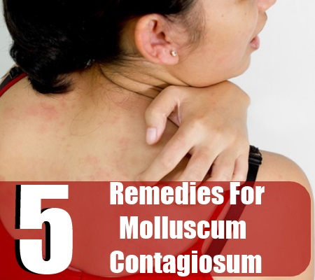 Remedies For Molluscum Contagiosum