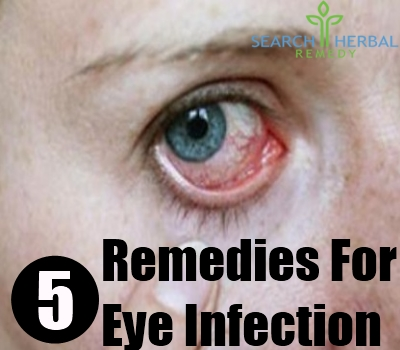 5 Remedies For Eye Infection Search Herbal Home Remedy