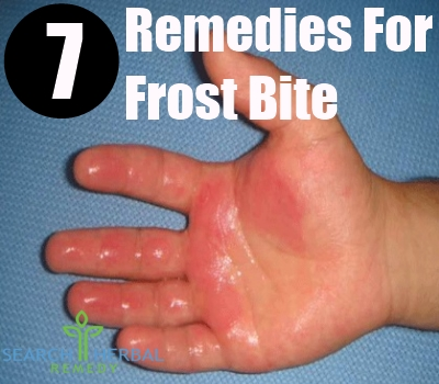 7 remedies for frost bite search herbal home remedy frost bite fandeluxe Ebook collections