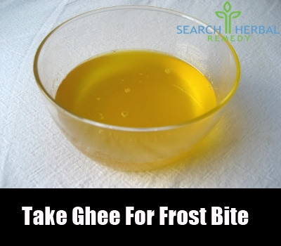 7 remedies for frost bite search herbal home remedy mustard oil mustard oil is amazing in treating frostbites fandeluxe Ebook collections