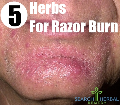 5 Best And Effective Ways To Cure Razor Burn With Herbs