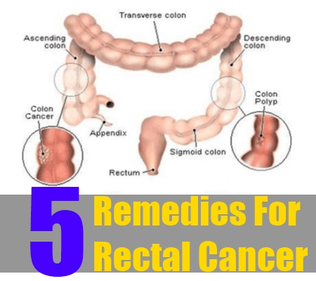 rectal cancer