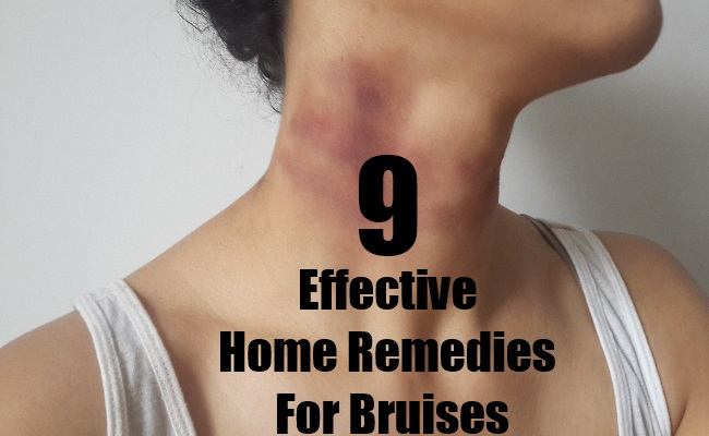 Effective Home Remedies For Bruises