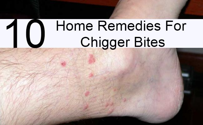 10 Home Remedies For Chigger Bites