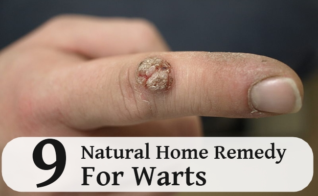 Natural Home Remedy For Warts