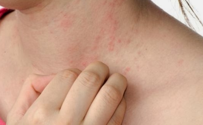 Infections And Soreness Of Skin