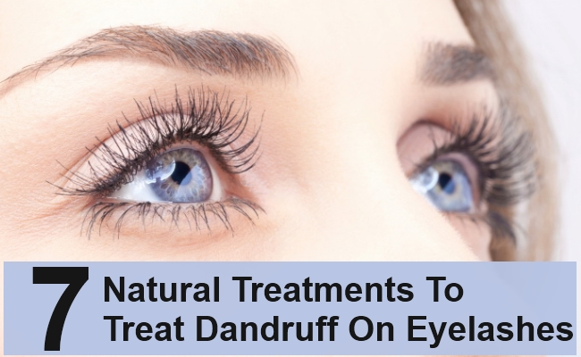 Natural Treatments To Treat Dandruff On Eyelashes