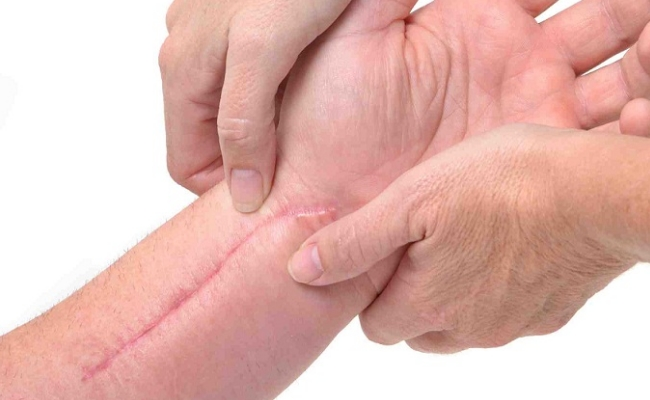 Prevent Post-Surgical Scar